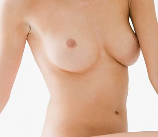 cc_kat_breast