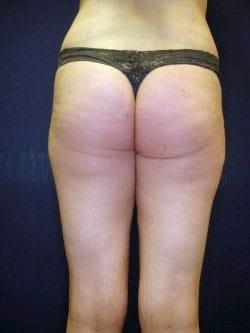 brazilian-butt-before-back