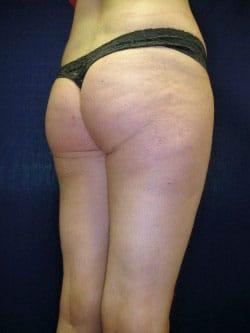 brazilian-butt-before-side