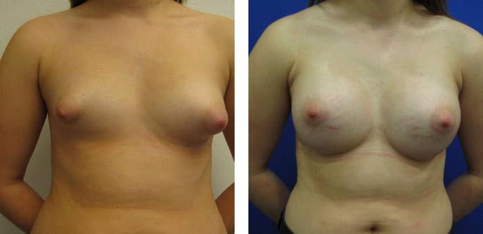 Breast-Augmentation-2311979-2495306