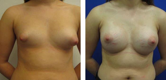Breast-Augmentation-2311979-2495306
