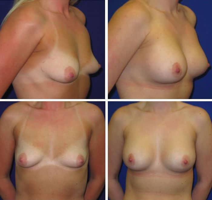 Breast_Augmentation