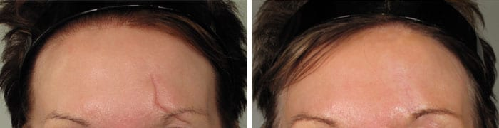 Scars-Treatment