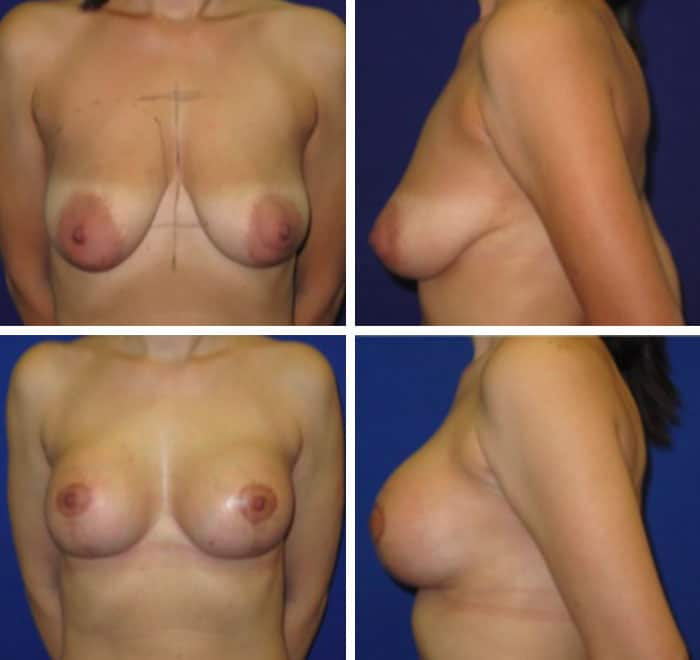 breast-lift-with-implants