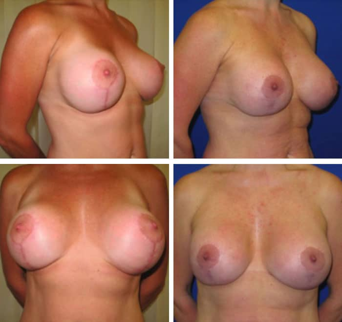 breast_implant_revision