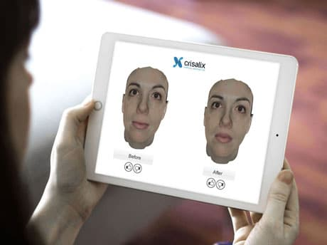 crisalix-visualize-ipad