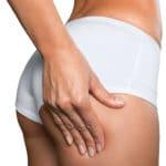 vaserliposuctionbuttocks