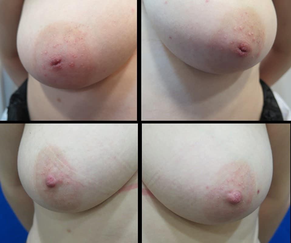 Website Nipple Eversion