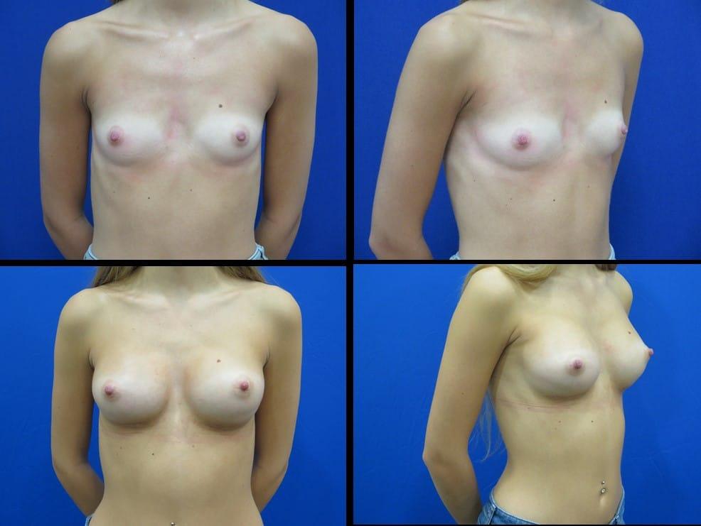 Website bba 265 implants