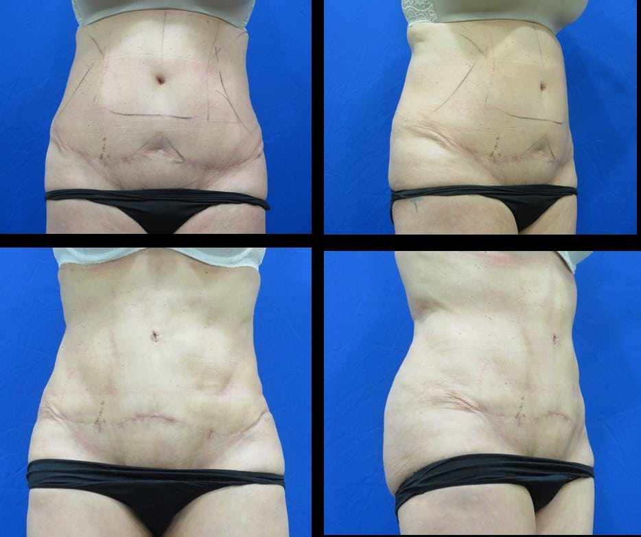 Vaser liposuction to abdominal, back and flanks