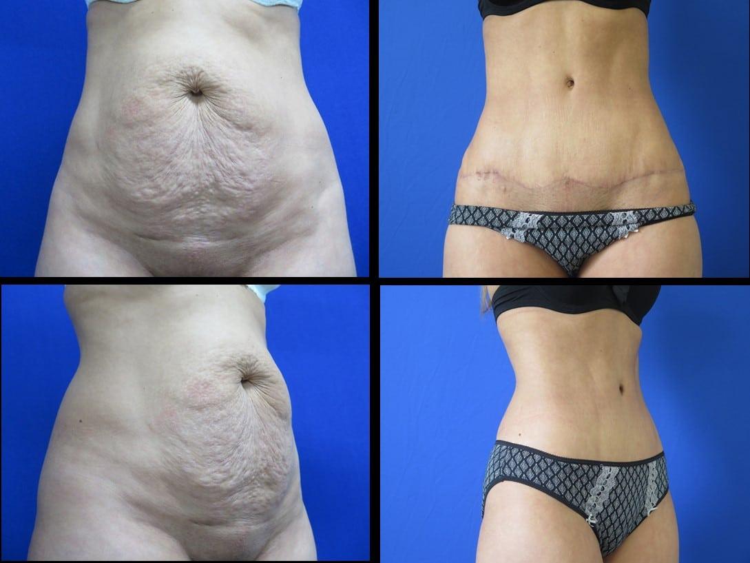website abdominoplasty