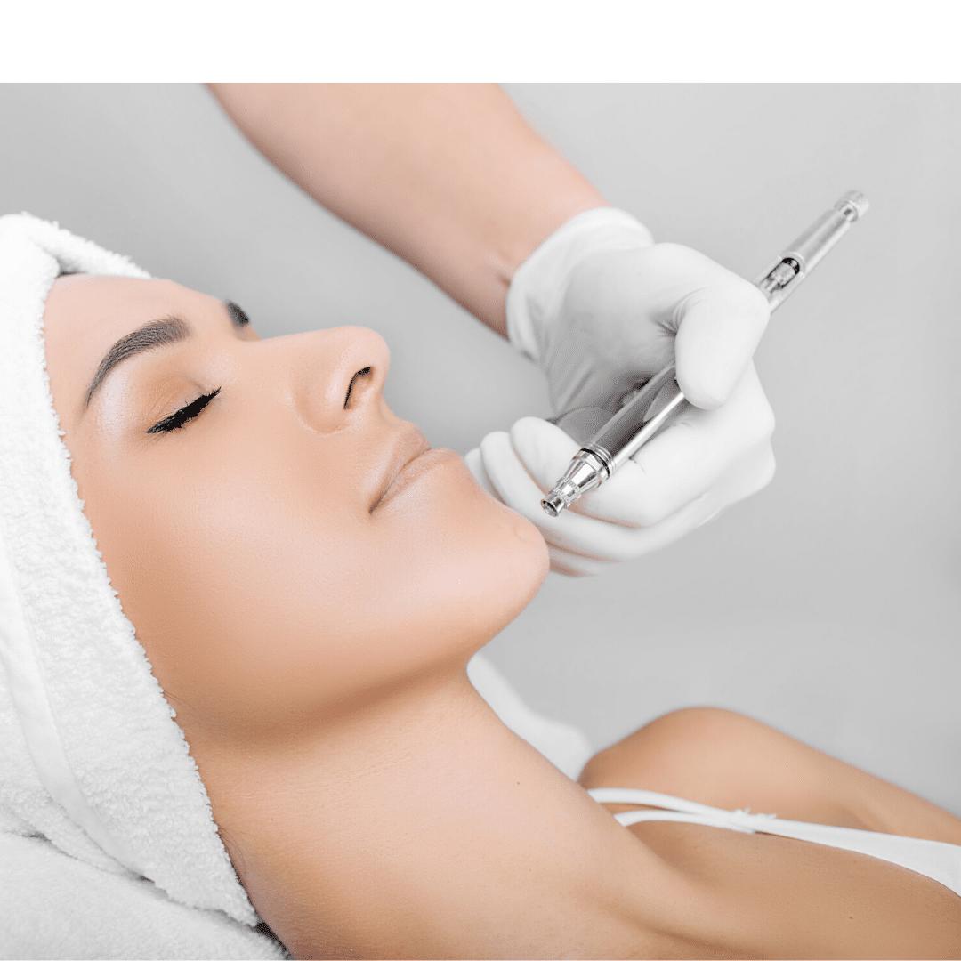 SkinPen Treatment