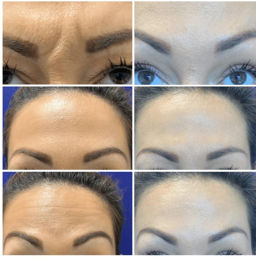 Before and After Derma Filler