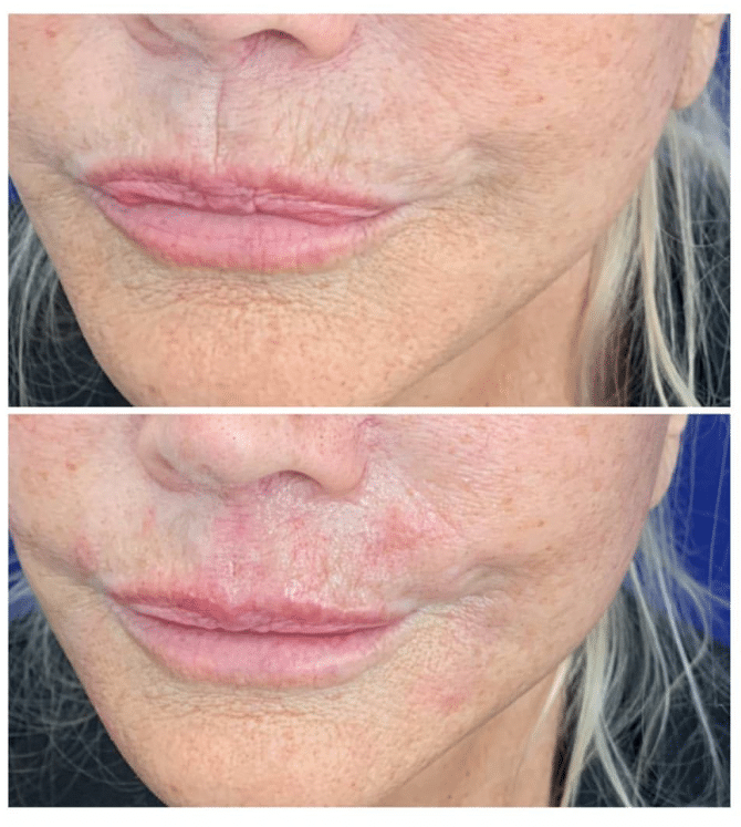 Before and After Dermal Filler