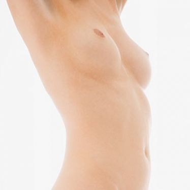 breast-reduction