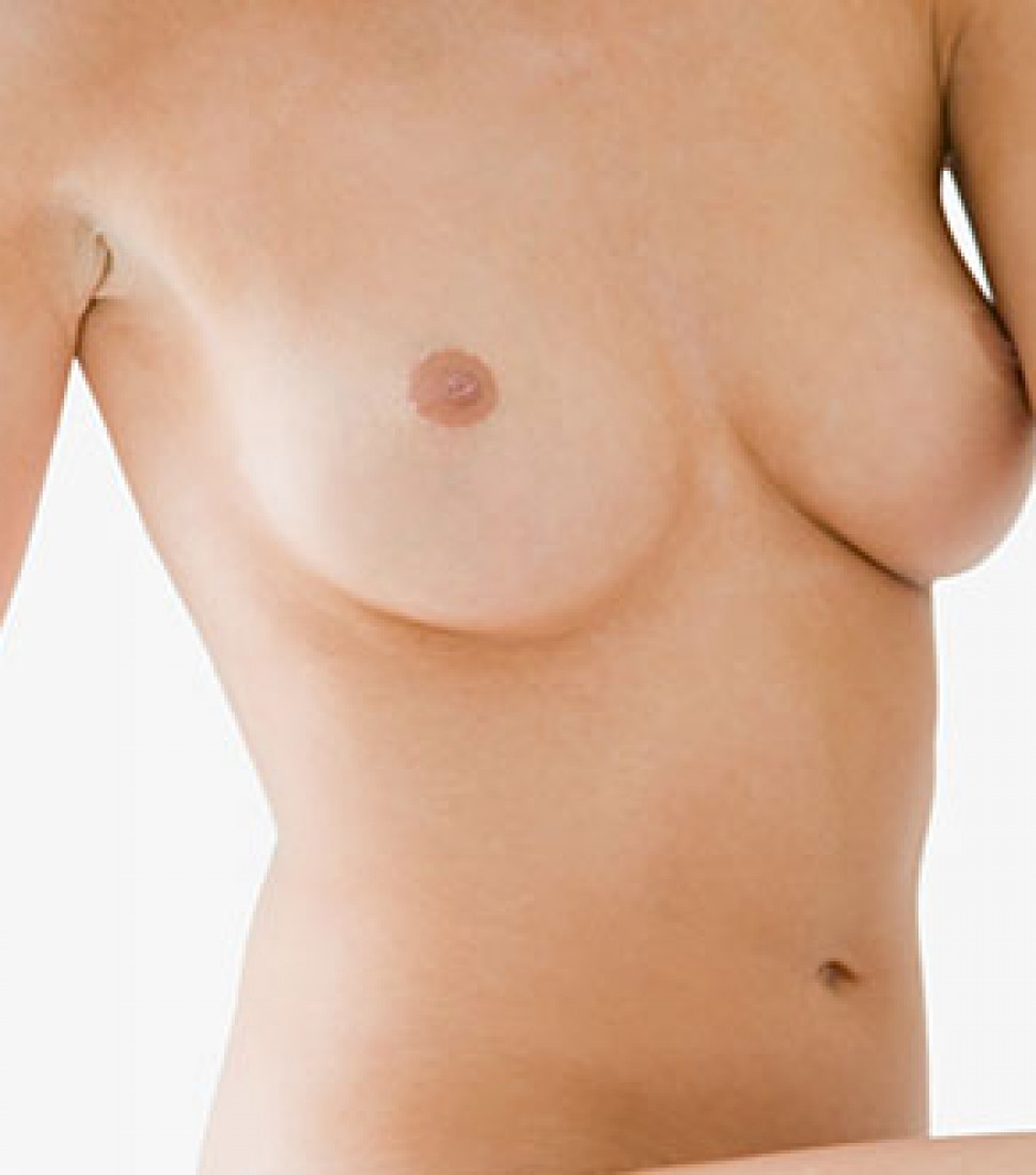 breast-surgical-inverted-nipple-correction