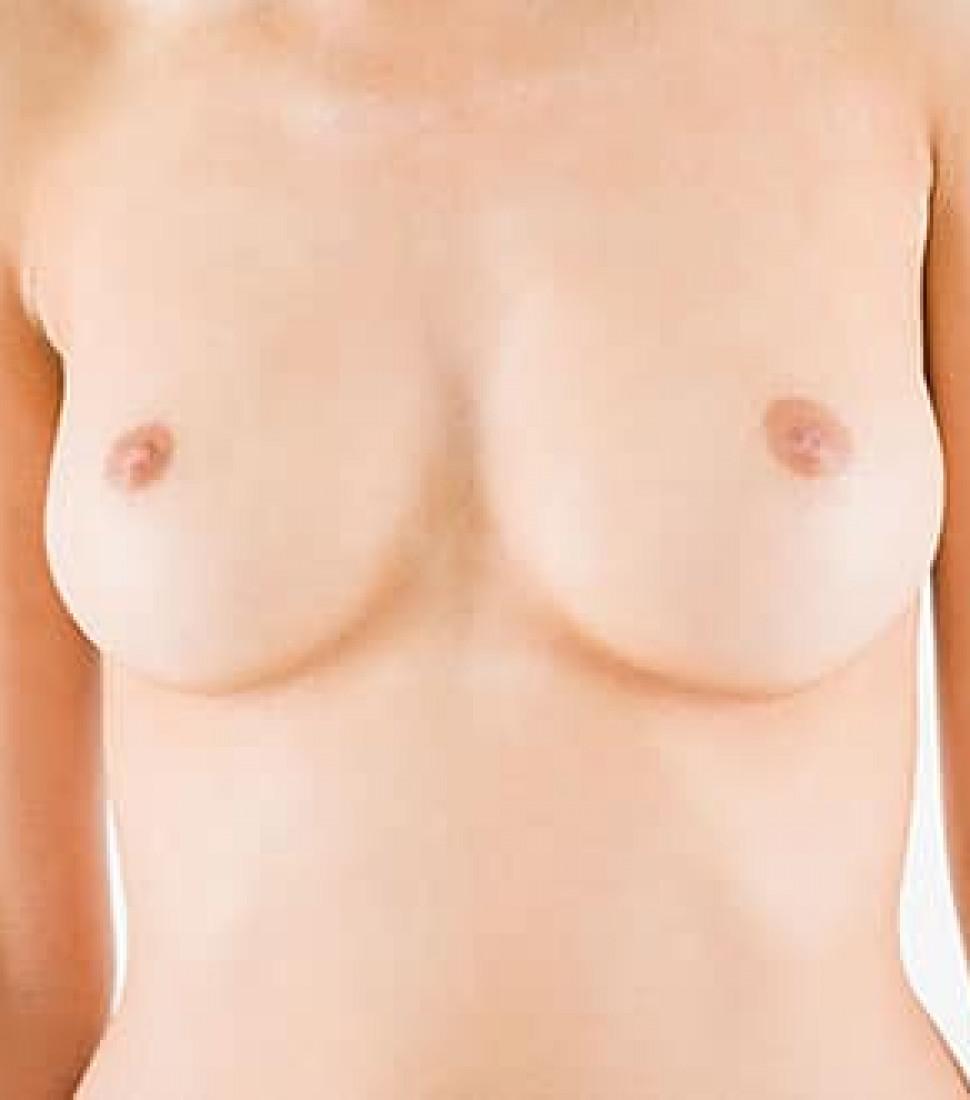 breast-enlargement-with-autologous-fat